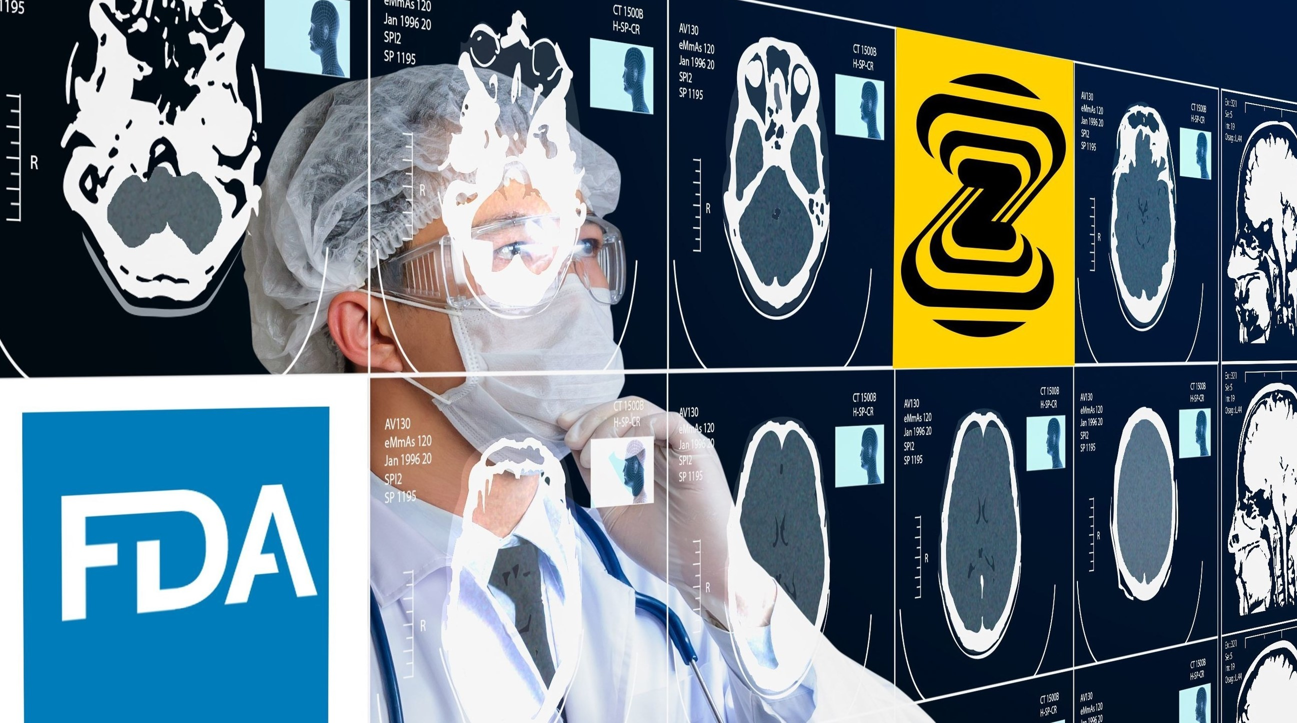 Impacting medical cases with the world's first FDA AI x-ray product – Zebra Medical Vision's AI1 solutions